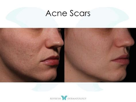 Pimple Dr Bpom For Scar Free Acne Care Berkualitas acne scars houston tx dr suneel chilukuri