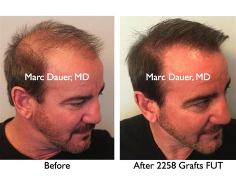 hair transplant america hair restoration surgery hair loss treatment hair