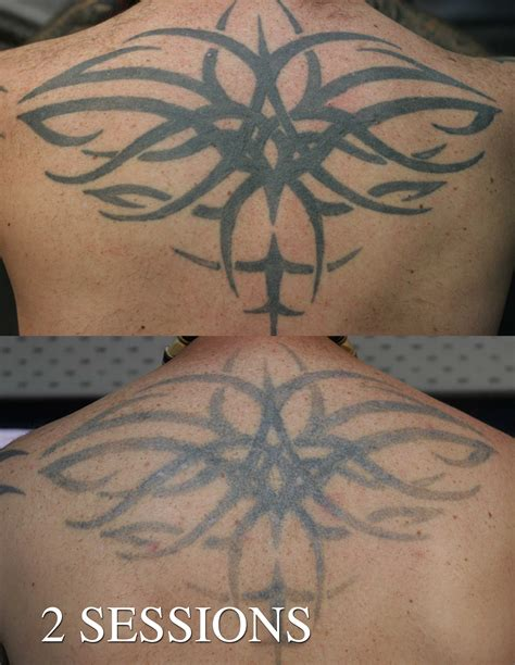 laser tattoo laser removal 171 eternal