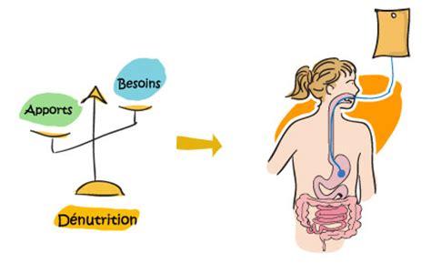 alimentazione parenterale ed enterale d 233 nutrition chez l enfant atteint de mucoviscidose
