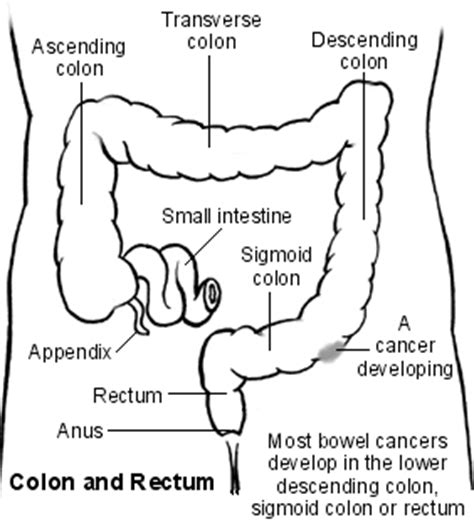 Stool Stuck In Rectum by Bowel Cancer And Colon Discover Bowel Cancer Symptoms