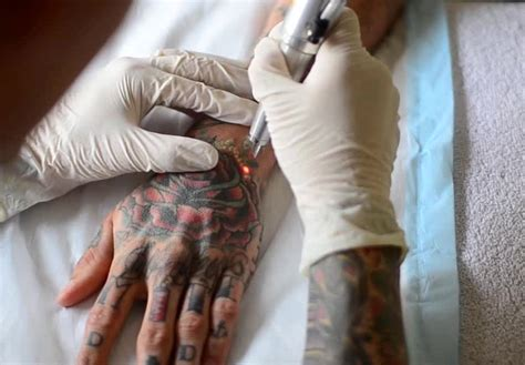 does getting a tattoo removed hurt laser removal cost side effects precautions