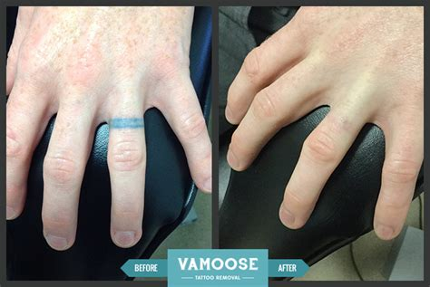 chicago tattoo removal finger removal chicago il vamoose