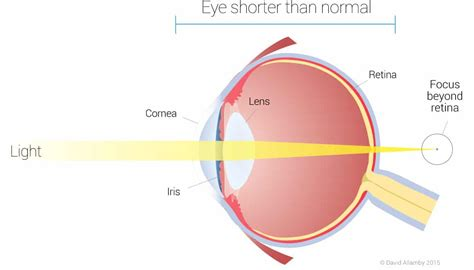 sighted laser eye surgery focus clinic