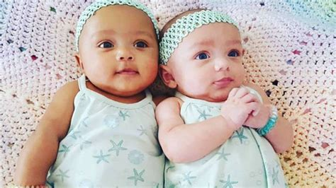 what color are babies born with babies born with different skin colors in illinois
