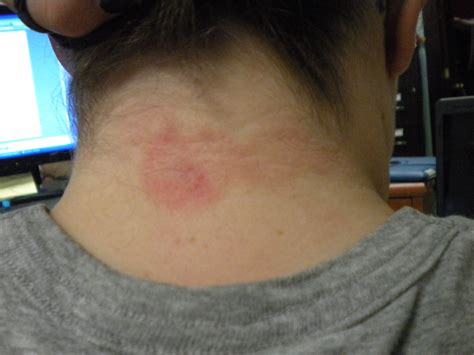 rash red bumps on back of neck rash around hairline pictures photos