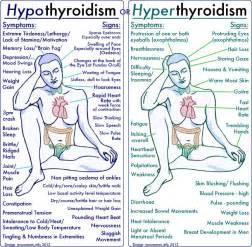 hypothyroid hypothyroid checklist