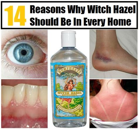 14 reasons why witch hazel should be in your home