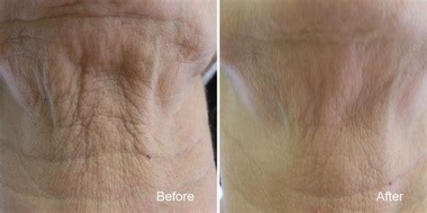 sagging skin tightening wrinkle reduction bc laser