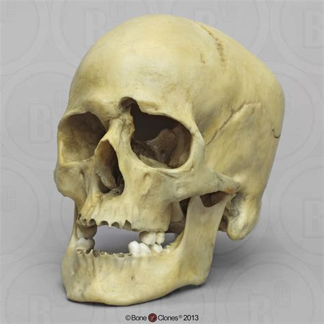 Human Male Skull With A 32 Caliber Gunshot Wound Bone Skull With Bullet