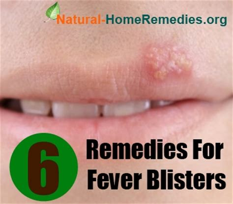 6 home remedies for fever blisters how to treat fever