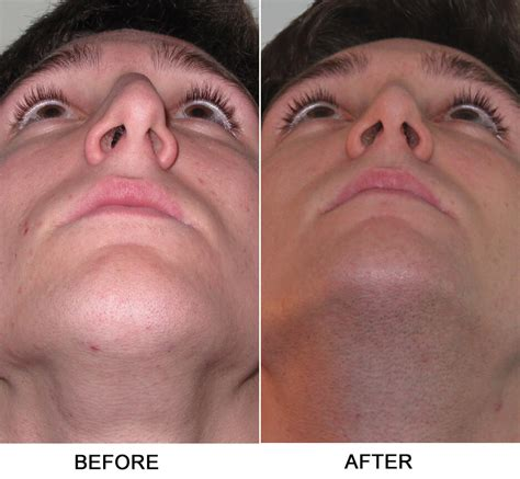 what does it when a s nose is deviated septum dr garrett ny sinus rhinoplasty surgeon