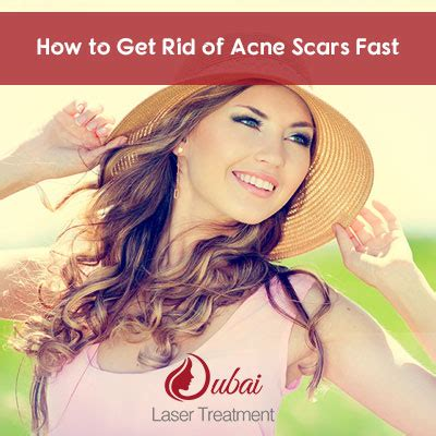 how to get rid of acne scars fast dubai laser treatment