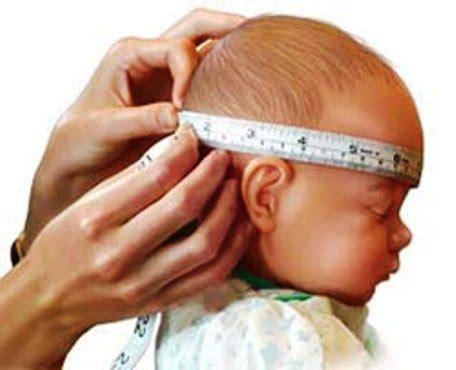 el empollon el cabeza 8434865572 el per 237 metro craneal en el beb 233