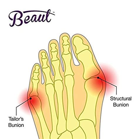 Bunion Protector And Detox Sleeve With Euronatural Gel Reviews by Freeshipping Bunion Corrector Bunion Toe Straightener