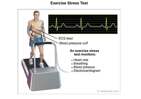stress test stress tests and failure cardiac health