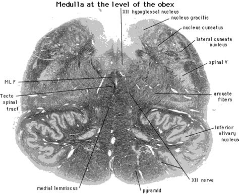 Transverse Section Of Medulla Oblongata by Zoo Animals In The Us What Happens With The Dead Ones