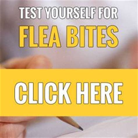 stop flea bites  itching quick fix  relieve itchy skin dogs   helpful