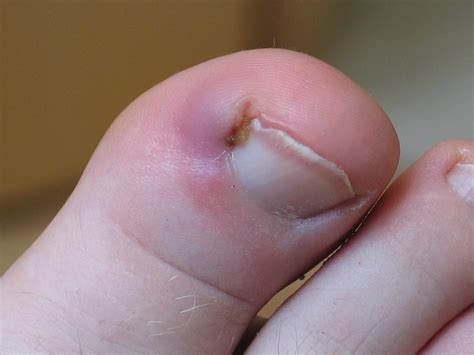 Toe Nail by Treatment For An Ingrown Toenail Westwood Foot Clinic