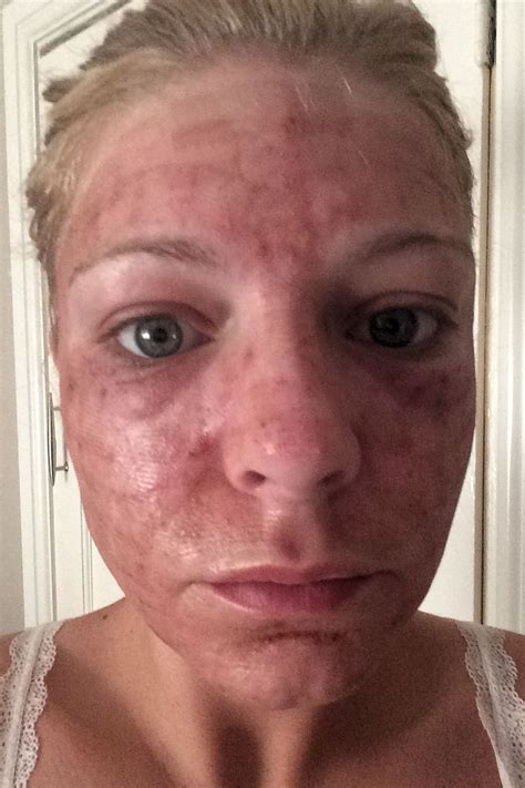 Vegan Detox Caused Bloutchy Itchy Skin by Laser To Freshen My Skin My After