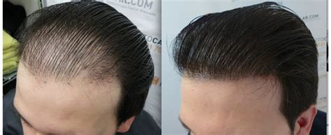 new hair transplant doctor or technician who s better in working with fue