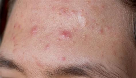 how do i stop male breast buds quickly healthtap cystic acne causes symptoms and treatments