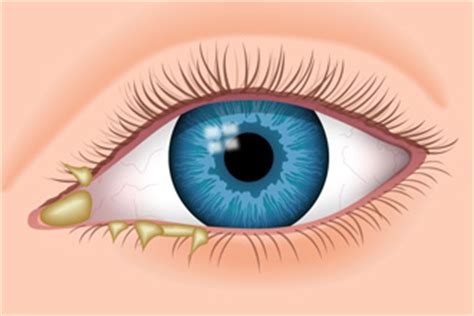 eye goop eye discharge causes types treatment
