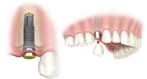 Comfort Care Dental Sherman Oaks The Dos And Don Ts Of Getting Dental Implants
