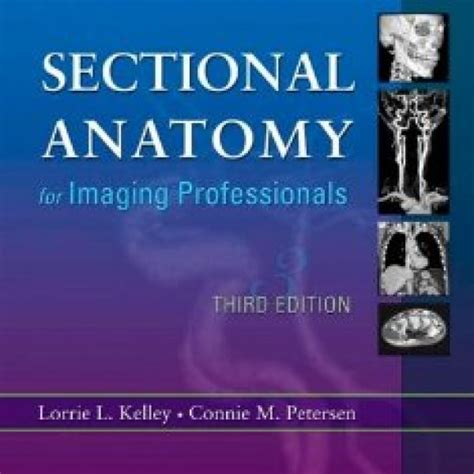 Sectional Anatomy For Imaging Professionals by Test Bank For Sectional Anatomy For Imaging Professionals