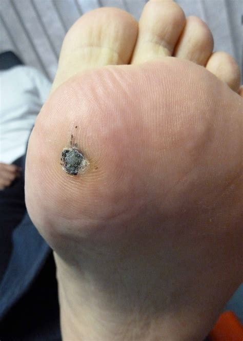 Planters Wart Symptoms by Small Plantar Wart Pictures Photos