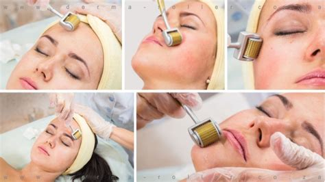 dermaroller anwendung hause derma roller sa 14 amazing benefits for your skin