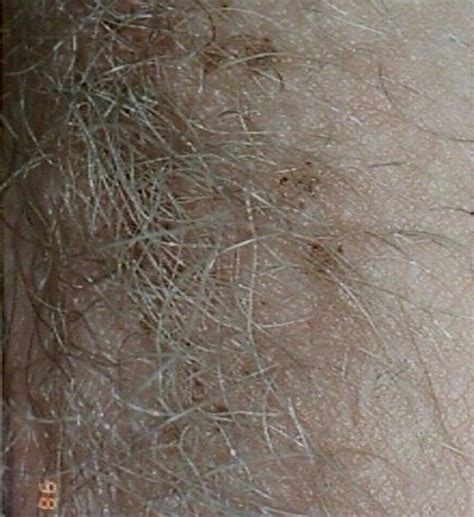 gray pubic hair pictures of gray pubic hair rachael edwards