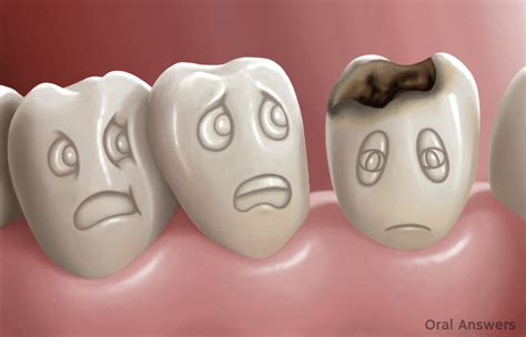 tooth decay   disease oral answers
