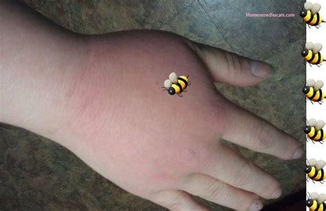 home remedies  bee sting   work