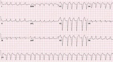 supraventricular tachycardia with aberrancy exle