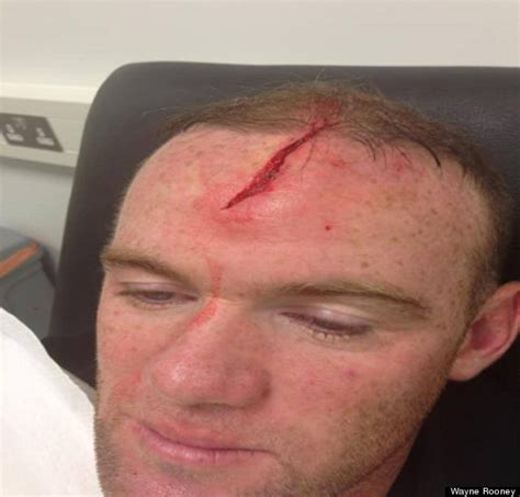 wayne rooney posts pictures   completely messed