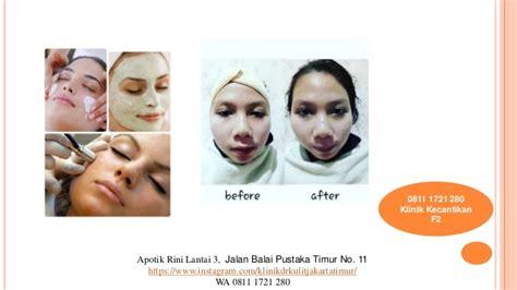 Suntik Vitamin C Jakarta 0811 1721 280 dokter kulit suntik vitamin c di jakarta