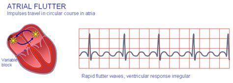 atrial fibrillation diagram what is atrial flutter
