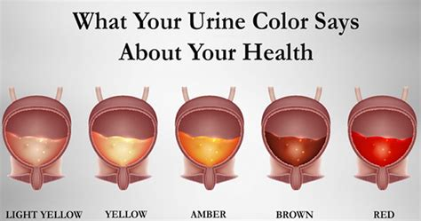 what is my color learn what the color of your urine means