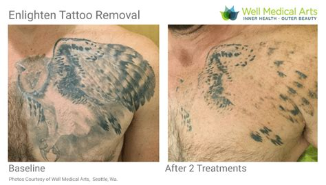 how good is tattoo removal removal in seattle using pico technology at well