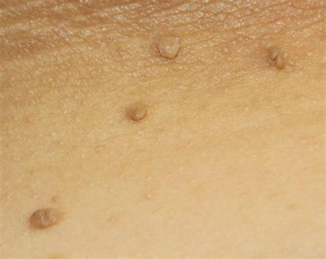 skin tags skin tag removal san antonio boerne