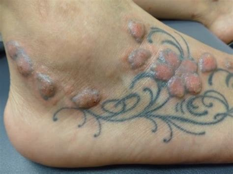 new tattoo raised up ink and infection 10 percent have skin problems after