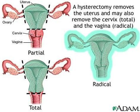 mood swings after hysterectomy what is hysterectomy alternative alternatives to