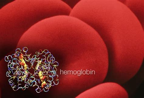 symptoms hemoglobin m disease anemia slideshow symptoms causes and treatments for