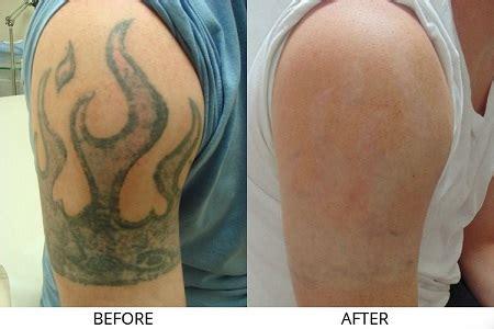 new tattoo removal 2015 x 243 a h 236 nh xăm bằng laser co2 c 243 để lại sẹo kh 244 ng