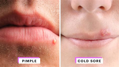 why would someone be covered in sores how to identify a herpes cold sore vs pimple allure