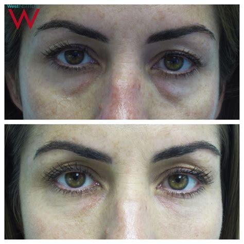 best techniques best technique for eye filler the west institute