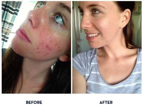 tattoo magic cream natural skincare with real results nourished life australia