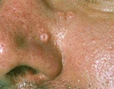 sebaceous cyst treatment sebaceous hyperplasia pictures removal symptoms treatment causes