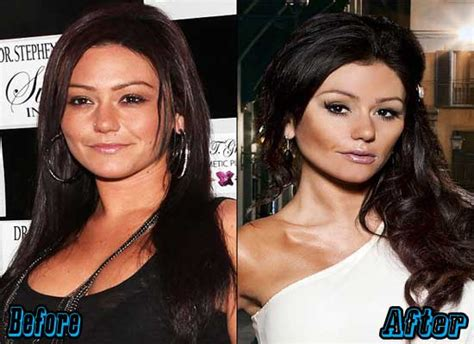 jenni jwoww before and after plastic surgery breast jwoww plastic surgery before and after